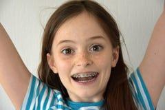 Flicka med tand- hänglsen royaltyfria foton