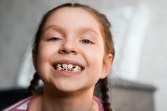 Flicka med tand- hänglsen Arkivbild