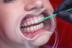 Flicka på tänder som gör vit tillvägagångssätt med den öppna munnen royaltyfria foton