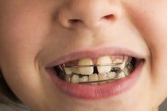 Flicka som bär en orthodontic tand- apparatur arkivbild