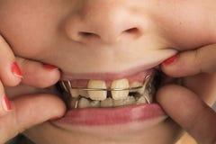 Flicka som bär en orthodontic tand- apparatur Royaltyfri Fotografi