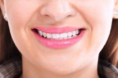 Flicka som ler med sunda tänder Arkivfoton