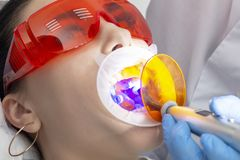 Flickan på förebyggande mottagande på den tandläkareThe doktorn polymeriserar det fyllnads- materialet i patientens tand Behandli fotografering för bildbyråer