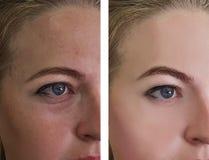 Flickan rynkar behandlingar för ögon före och efter royaltyfria foton