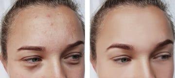 Flickan rynkar behandlingar för ögon före och efter för att flå borttagningspåsar royaltyfria foton
