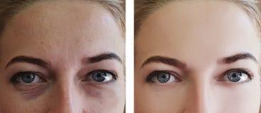 Flickan rynkar behandlingborttagning för ögon före och efter royaltyfri foto