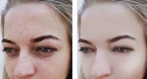 Flickan rynkar borttagning för ögon före och efter, påsar, bloating arkivbild