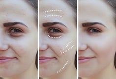 Flickan rynkar effekttillvägagångssätt för ögon före och efter arkivfoto