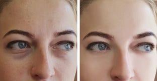 Flickan rynkar för behandlingborttagning för ögon före och efter påsar royaltyfri fotografi