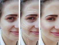 Flickan rynkar tillvägagångssätt för ögon före och efter fotografering för bildbyråer