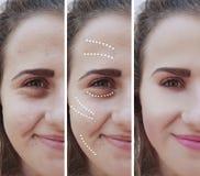 Flickaskrynklaögon före och efter som bloating tillvägagångssätt för terapieffektbehandling arkivfoton