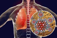 Flu viruses in human lungs. 3D illustration showing anatomy of human respiratory system and close-up view of influenza virus inside lungs Royalty Free Stock Image