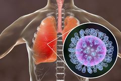 Flu viruses in human lungs. 3D illustration showing anatomy of human respiratory system and close-up view of influenza virus inside lungs Stock Images