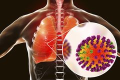 Flu viruses in human lungs. 3D illustration showing anatomy of human respiratory system and close-up view of influenza virus inside lungs Stock Photos