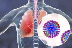 Flu viruses in human lungs. 3D illustration showing anatomy of human respiratory system and close-up view of influenza virus inside lungs Stock Photography
