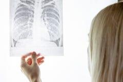 Fluorography de examen del doctor de sexo femenino, radiografía Desease del pulmón y concepto del tratamiento fotos de archivo libres de regalías