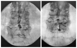 Fluoroscopic geführter lumbaler Dorn der epiduralen Einspritzung Stockfotos