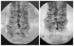 Fluoroscopic guided epidural injection lumbar spine. This non-operative, outpatient procedure is designed to provide relief for patients with pain in lumbar stock photos