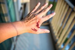 Focus dog bite wound and blood on hand. Infection and Rabies concept. Pet care and rabies prevention concept. Accidental and first aid concept. image for royalty free stock photo