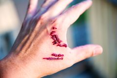Focus dog bite wound and blood on hand. Infection and Rabies concept. Royalty Free Stock Photos