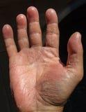 Fokal- Exfoliative keratolysis - gömma i handflatan skalning Arkivbilder