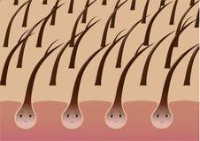 Folículos de pelo de la historieta en el cuero cabelludo que sufre de extremos partidos libre illustration