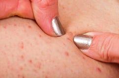 Folliculitis na pele humana imagens de stock
