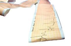 Fond d'ecg d'ekg de cardiogramme Photographie stock