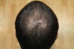 Fond de tête chauve Image stock