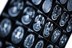 Fond médical avec l'image de balayage d'IRM de la tête humaine Photo libre de droits