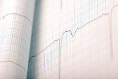 Fond médical d'ECG Image stock