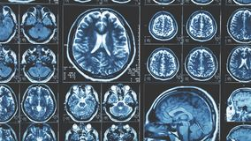 Fondo de la exploración de cerebro de Mri, tomografía de resonancia magnética fotos de archivo