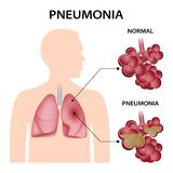 Fondo del concepto de la pulmonía, estilo realista ilustración del vector