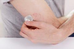 Fondo di bianco della tavola della siringa della medicina della pelle della mano della prova di ricerca del monitoraggio dello zu fotografia stock