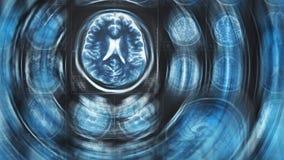 Fondo di scansione del cervello di Mri, tomografia, con effetto di moto del cerchio della sfuocatura fotografie stock