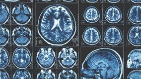 Fondo di scansione del cervello di Mri, tomografia a risonanza magnetica fotografie stock