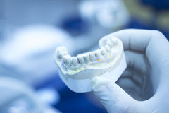 Fonte en céramique de modèle de plat de moule de dentiste de dents dentaires d'argile photo libre de droits