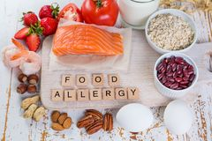 Food allergies - food concept with major allergens Stock Photos