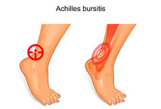The foot is affected by Achilles bursitis. Vector illustration of a foot is affected by Achilles bursitis Royalty Free Stock Photo