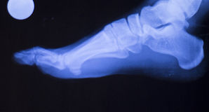 Foot ankle injury xray scan Royalty Free Stock Photography