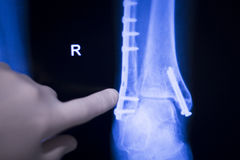 Foot ankle metal implant xray scan Stock Photography