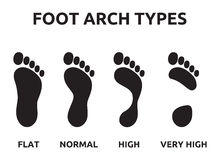 Foot arch types. Vector illustration of the various foot arch types stock illustration