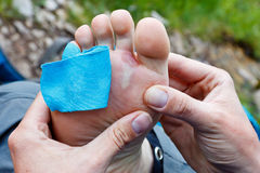 Foot Blister. A hiker is inspecting a foot blister Stock Images