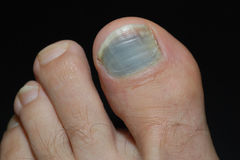 Foot with blue toenail on black Stock Photos