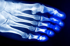 Foot bone Xrays Royalty Free Stock Image