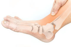 Foot bones. Injury white background stock image