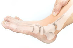 Foot bones injury. White background royalty free stock photography