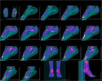 CT foot image. Foot in computer tomography, color CT image royalty free stock photo