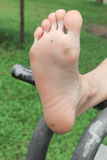 Foot corn :Select focus with shallow depth of field. Stock Images