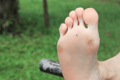 Foot corn :Select focus with shallow depth of field Royalty Free Stock Photo